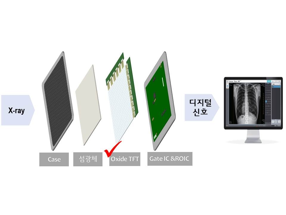 This image provided by LG Display Co. on Feb. 23, 2021, shows the concept of a digital X-ray detector using oxide-based thin film transistors. (PHOTO NOT FOR SALE) (Yonhap)