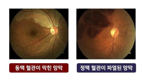 망막동맥폐쇄, 망막정맥폐쇄 환자의 망막 모습