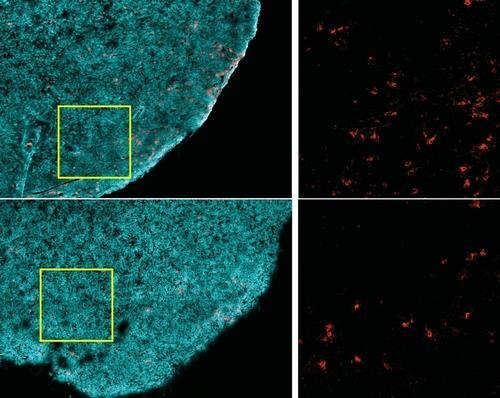 암세포 죽이는 T세포의 감소