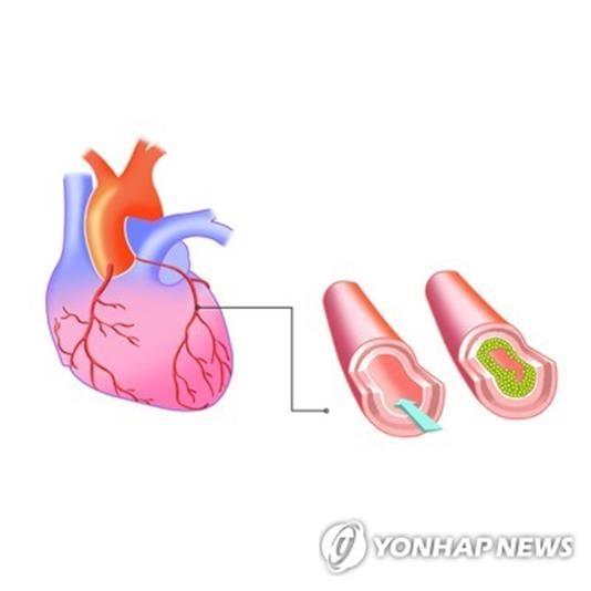 관상동맥 질환